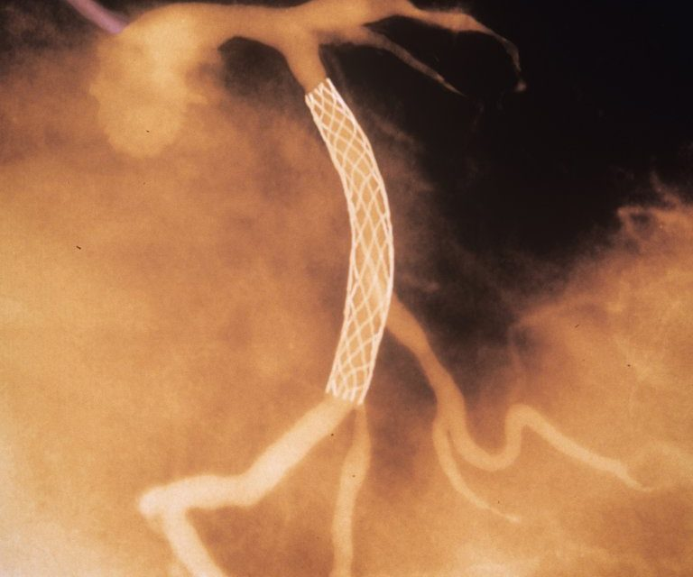 Heart Stents Don't Ease Chest Pain (!)