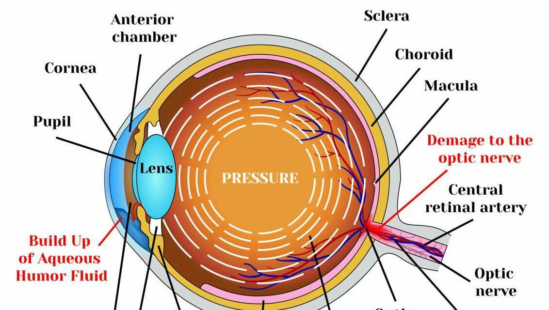 Cannabis as a treatment for Glaucoma