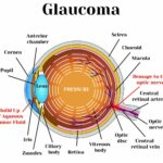 Cannabis as a treatment for Glaucoma